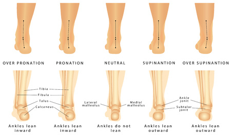 Illustration for Foot deformation - Valgus and varus defect. Normal human foot and the foot with pronation or flatfoot, with hindfoot deformity - Royalty Free Image
