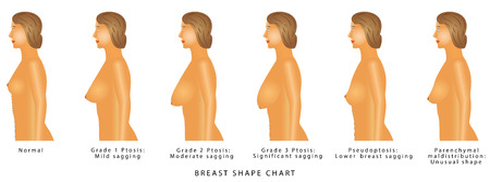 Ilustración de Breast Shape chart. Degrees of breast ptosis. Set with woman bust. Breast size and type on a white background - Imagen libre de derechos