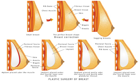Illustrazione per Plastic surgery of breast. Diagram about method of insertion for breast implant. Cosmetic surgery illustration. Anatomy of the breast and implants. The rise and increase of breast plastic surgery - Immagini Royalty Free