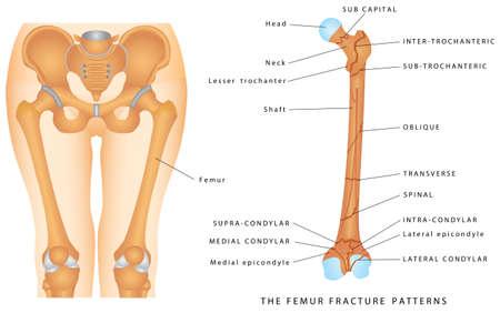 Illustration pour The Femur Fracture Patterns. Different kinds of fractures. Descriptive illustration with examples of fractures of the femur bone on white background. - image libre de droit