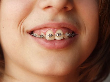 Teen smiling with braces on teeth
