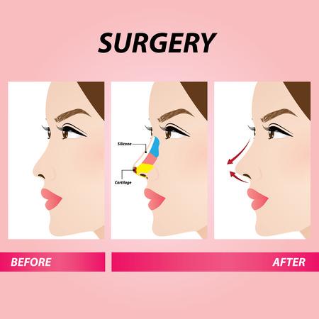 Illustration pour nose beauty surgery , rhinoplasty vector illustration - image libre de droit