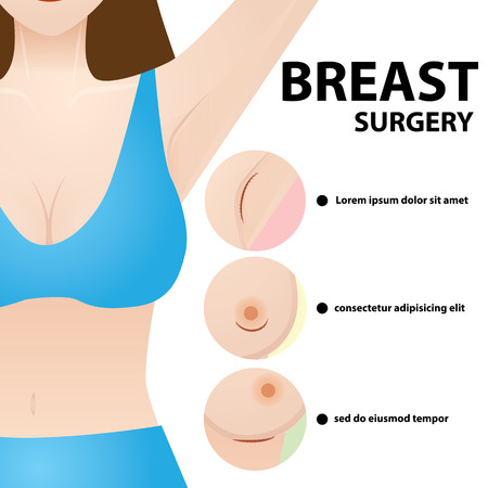 Illustration for Breast surgery vector illustration - Royalty Free Image