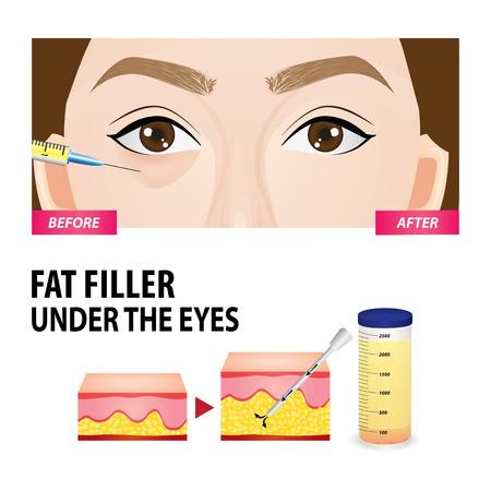 Filler injection under the eyes vector illustration: Royalty