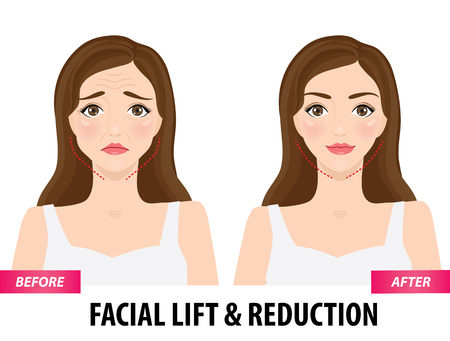 Illustration pour Facial lift and reduction before and after vector illustration - image libre de droit