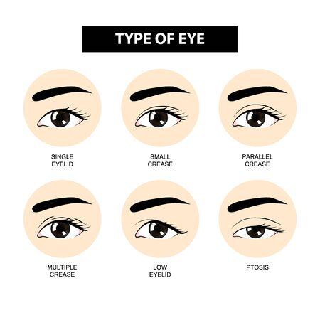 Illustration pour Type of eyelid crease vector illustration - image libre de droit
