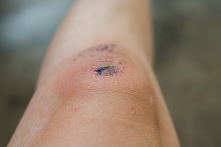Scratch on the knee caused by a fall.