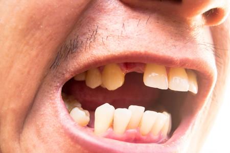 Foto de Man opening his mouth showing missing teeth - Imagen libre de derechos