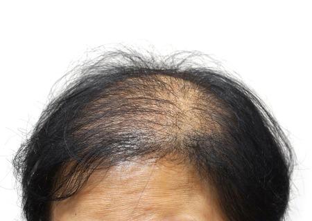 Foto de Asian female head with hair loss - Imagen libre de derechos