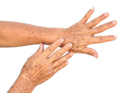 Photo pour Old Asian female hands full of freckles and wrinkles / Aging concept - image libre de droit
