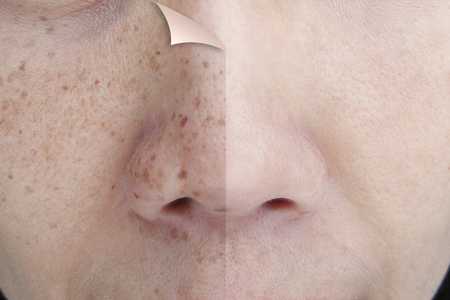 Photo pour Before and After Retouch Freckles on Young Asian Woman Face - image libre de droit