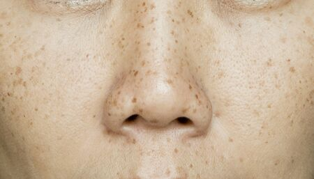 Photo pour Freckles on Asian Woman Face, Skin Problems - image libre de droit