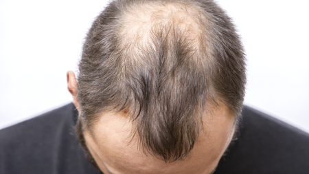 Photo for Balding young man, Hair loss problem - Royalty Free Image