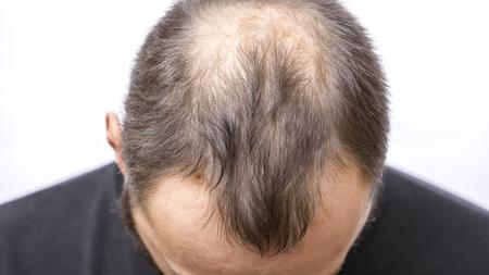 Photo pour Balding young man, Hair loss problem - image libre de droit