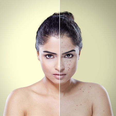 Foto de Comparison portrait of young Indian woman with problematic skin and after skin care in the studio - Imagen libre de derechos