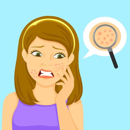 Illustration pour unhappy girl with pimples on her face - image libre de droit