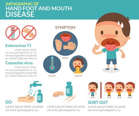 Ilustración de Hand foot and mouth disease. info-graphic. - Imagen libre de derechos