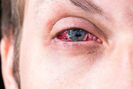 Photo pour postoperative heavy inflamed eye closeup shot with selective focus - image libre de droit