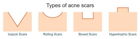 Illustration pour Types of acne scars - image libre de droit