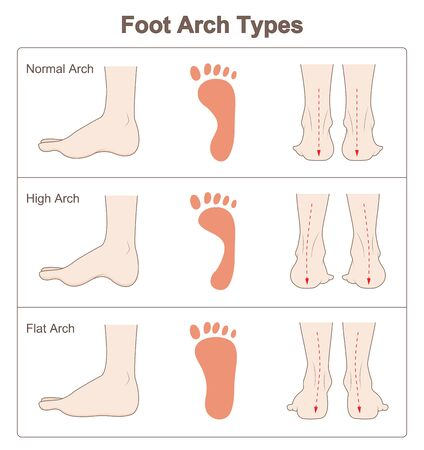 Illustration for Foot arch types - Royalty Free Image