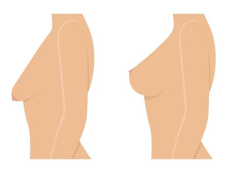 Ilustración de Woman before and after breast uplift - Imagen libre de derechos