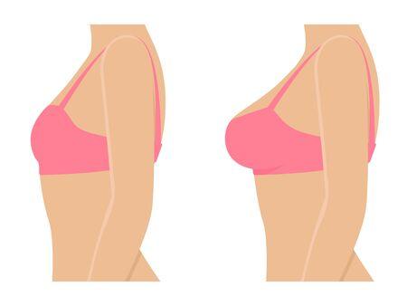 Ilustración de Female breasts in bra before after augmentation - Imagen libre de derechos