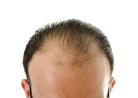 Man loosing hair, baldness