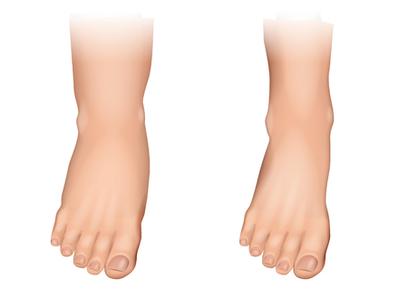 Ilustración de Vector illustration of edema on feet. Swelling of the feet and ankles. - Imagen libre de derechos
