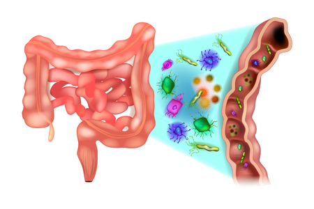 Illustrazione per Dysbiosis (also called dysbacteriosis). Dysbacteriosis of the intestine - Colon bacteria. - Immagini Royalty Free