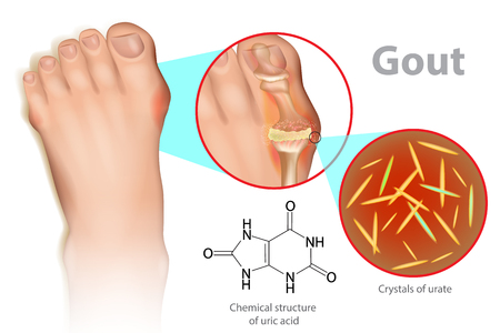 Ilustración de Illustration of foot with gout. It is a form of inflammatory arthritis due to the persistently elevated levels. - Imagen libre de derechos