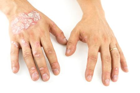 Foto de Psoriasis vulgaris on the mans hands with plaque, rash and patches, isolated on white background. Autoimmune  genetic disease. - Imagen libre de derechos