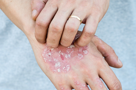 Foto per Man scratch oneself, dry flaky skin on hand with psoriasis vulgaris, eczema and other skin conditions like fungus, plaque, rash and patches. Autoimmune genetic disease. - Immagine Royalty Free