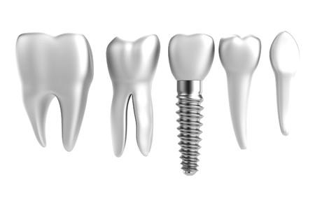 Photo pour realistic 3d render of tooth implant - image libre de droit