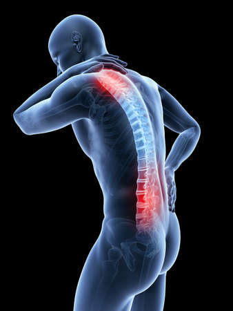 Photo for 3d rendered illustration of a man having a painful back and neck - Royalty Free Image