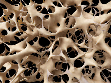 Photo for osteoporosis - unhealthy bone structure - Royalty Free Image