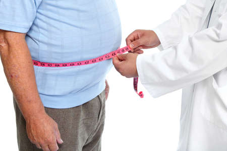 Foto de Doctor measuring obese man waist body fat. Obesity and weight loss. - Imagen libre de derechos