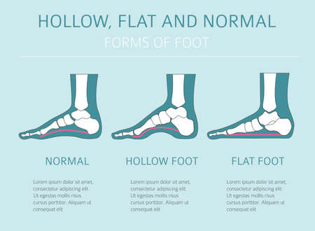 Ilustración de Foot deformation types,  medical desease infographic. Hollow, flat and normal foot. Vector illustration - Imagen libre de derechos