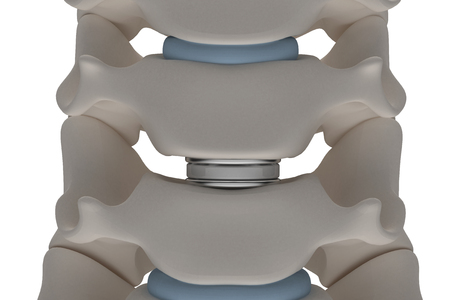 Photo pour Artificial intervertebral disc prosthesis is installed between the cervical vertebrae isolated on a white background 3d render image - image libre de droit