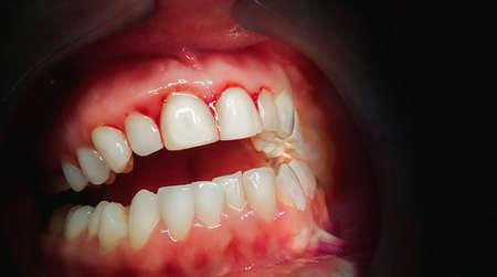 Photo pour Mouth with bleeding gums on a dark background. Close up. - image libre de droit