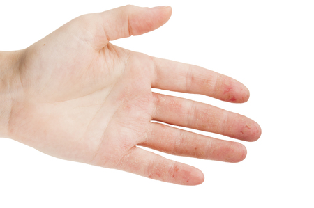 Photo for Female hand with dermatitis or eczema during an exacerbation on a white background - Royalty Free Image