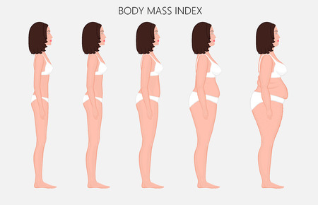 Ilustración de Vector illustration Human body mass Index, European woman from lack of weight to obesity. Side view. For advertising of cosmetic plastic procedures, stomach shunting, diet, medical publications. - Imagen libre de derechos
