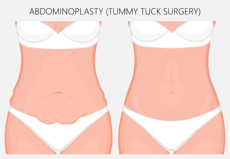 Ilustración de Realistic Vector illustration. Abdominoplasty, tummy tuck plastic surgery in woman. Front view. For advertising of cosmetic plastic procedures, stomach shunting, diet; for medical publications. EPS 8. - Imagen libre de derechos