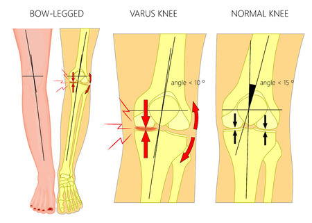 Illustration for Vector illustration diagram. Shapes of human legs: Normal and curved legs - Royalty Free Image