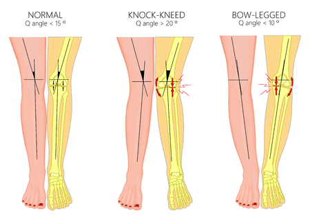 Illustration for Vector illustration diagram. Shapes of human legs. Normal and curved legs. Knock knees. Bowed legs. Genu valgum and genu varum.  For advertising, medical publications. EPS 10. - Royalty Free Image