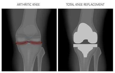 Illustration for Vector illustration. Anatomy, front x-ray of an arthritic knee joint and a knee after total knee replacement. For advertising and medical publications. EPS 10. - Royalty Free Image