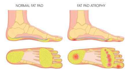 Ilustración de Vector illustration, diagram of a healthy foot and a foot with a fat pad atrophy. Medial and plantar view of a human foot. - Imagen libre de derechos
