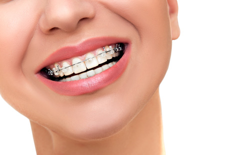 Foto de Closeup Beautiful Female Smile with Transparent Ceramic and Metal Braces on Teeth. Orthodontic Treatment. - Imagen libre de derechos