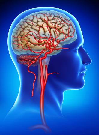 Foto de Rendering human head on a blue background with a saccular aneurysminternal carotid artery - Imagen libre de derechos