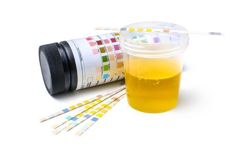 Foto de Medical exam   The urine test strips - Imagen libre de derechos