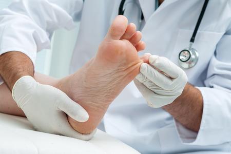 Foto de Doctor dermatologist examines the foot on the presence of athletes foot - Imagen libre de derechos